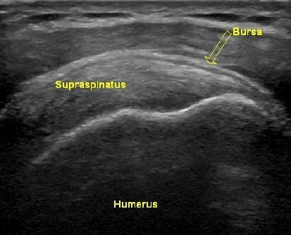 Shoulder Ultrasound